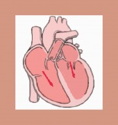 heart enlarged cr cutout image healthtips images